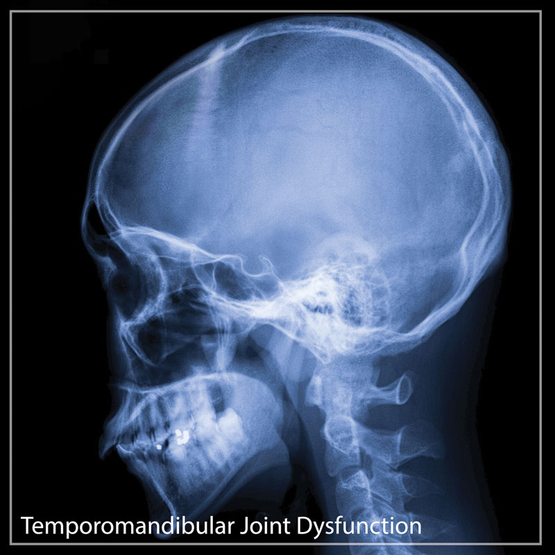 Temporomandibular joint dysfunction (TMJ)